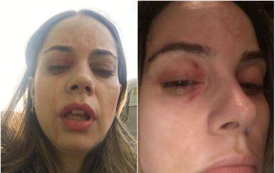 Napadnuta djevojka Mina Kus (Foto: Twitter/M.K.)
