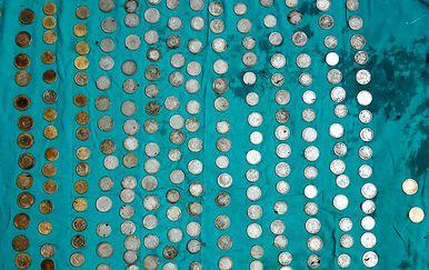 Liječnici su iz želuca izvadili 263 kovanice (FOTO: Profimedia)