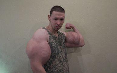 Ruski Hulk (Foto: Profimedia) - 7
