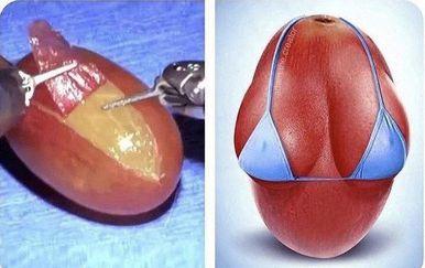 Operirali su grožđe (Foto: Twitter)