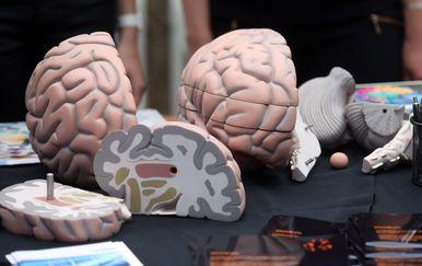 Mozak/Ilustracija (Foto: Borna Filic/PIXSELL)