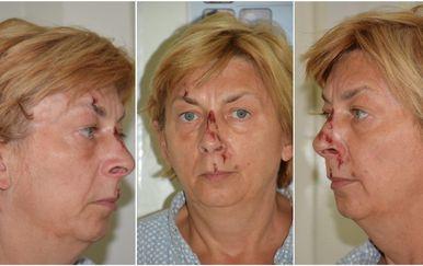 Žena pronađena na Krku