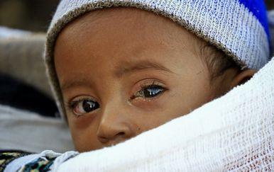 Kriza u Etiopiji - 2
