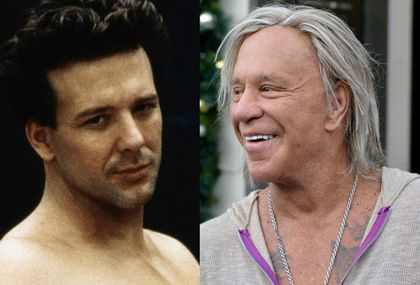Muškarci s plastičnim operacijama, nekad i sad - 5