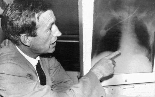 prvo presadivanje srca pedeset godina otkako je juznoafricki kirurg zadivio svijet