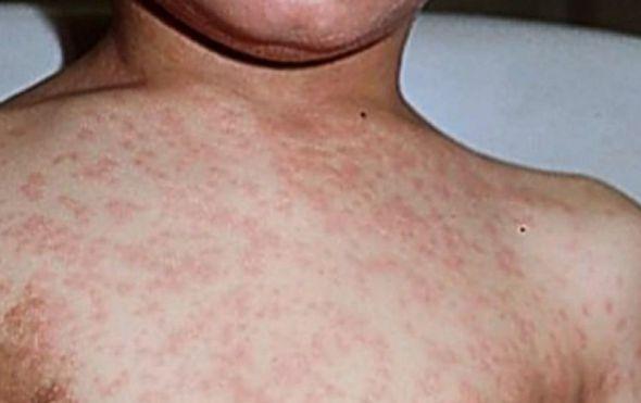 Broj beba cijepljenih protiv ospica u šest godina smanjio se za šest posto