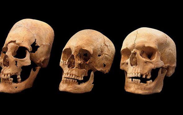 Jako deformirana lubanja (L), lubanja s manjim deformacijama (C) i lubanja bez deformacija (D) - (Foto: State collection for Anthropology and Paleoanatomy Munich)