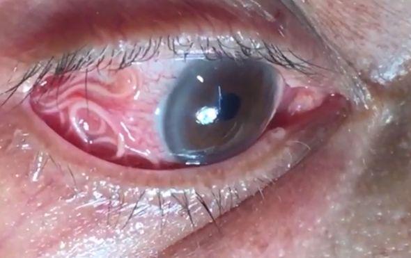 Parazit (Foto: Screenshot/YouTube)
