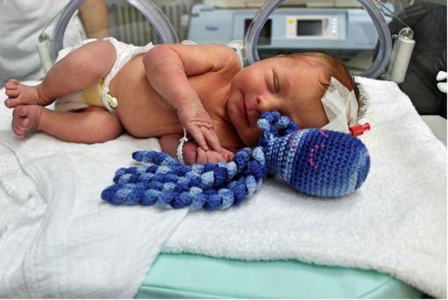Opća bolnica Virovitica je među prvima u Hrvatskoj koja bebama nudi hobotnicu za smirenje i utjehu