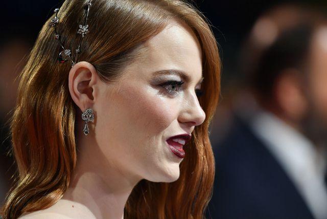 Glumica Emma Stone često nosi ukrase u kosi