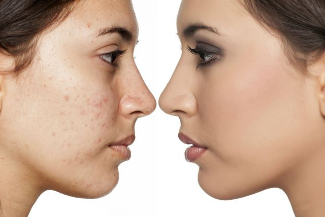 Lice žene prije i poslije nanošenja tekućeg pudera