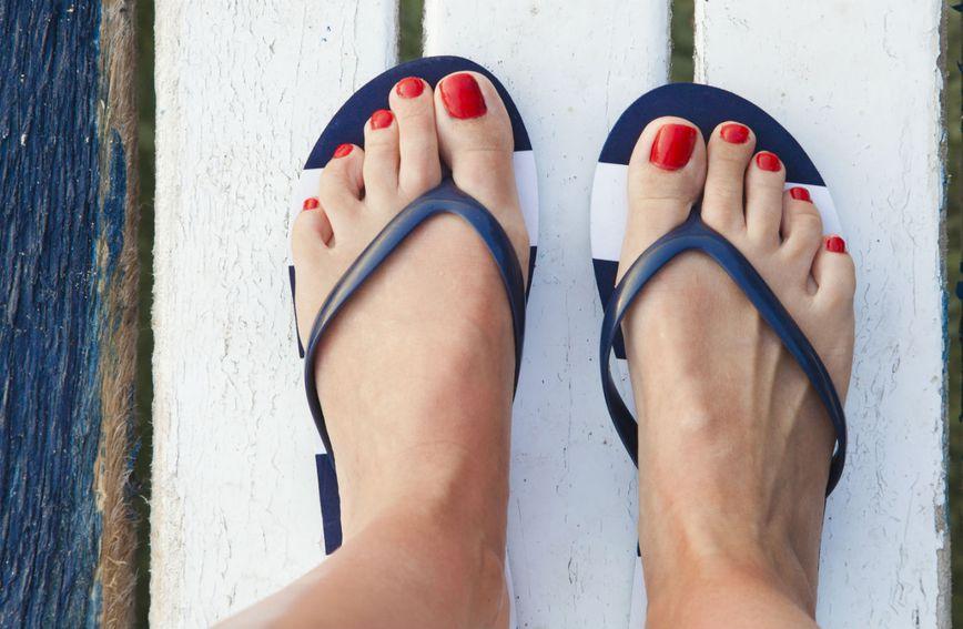 Japanke nisu prikladna obuća za osobe sa spuštenim stopalima