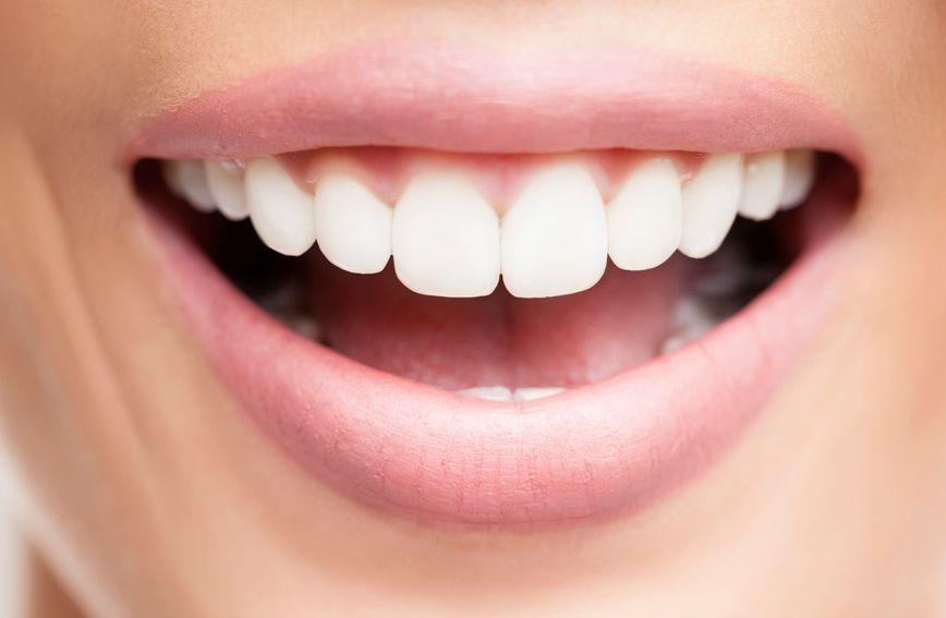 Uklanjanje kamenca važno je za zdravlje zuba
