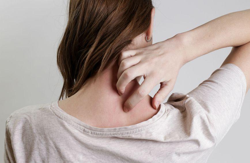 I suha koža može značiti da vaš metabolizam radi presporo