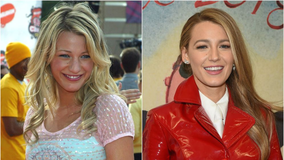 Nos Blake Lively danas izgleda drugačije, ali glumica nikad nije priznala da ga je korigirala