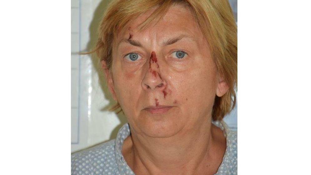 Ozlijeđena žena pronađena na Krku - 1