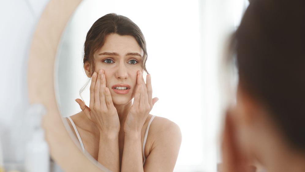 Prištići i akne najčešće se pojavljuju u hladnijem dijelu godine